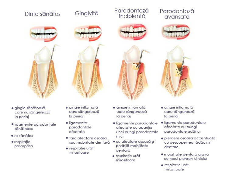 descriere-parodontoza