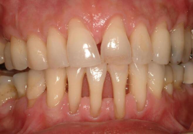parodontoza-cum-arata