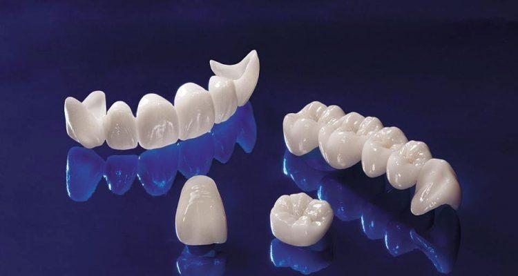 sensibilitate-dentara-coroane-dentare