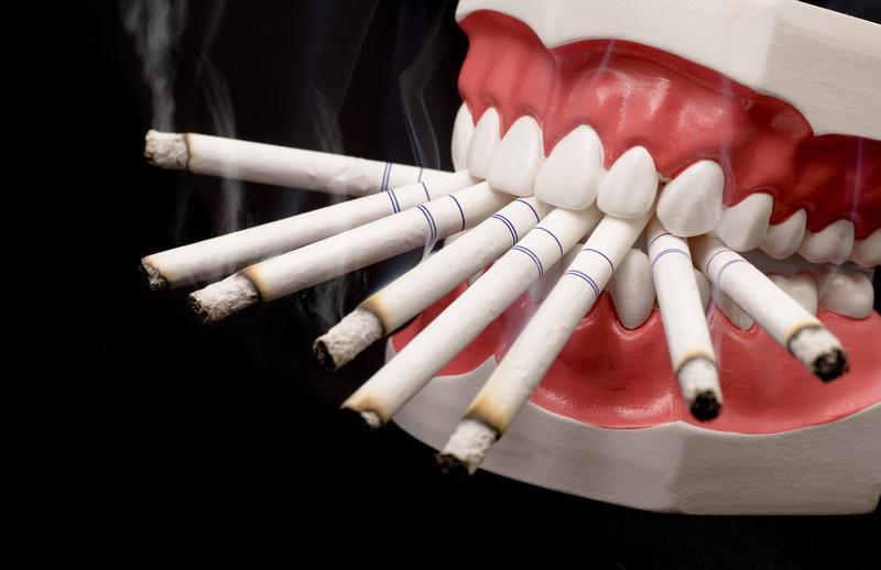 fumatul-ingalbeneste-dintii