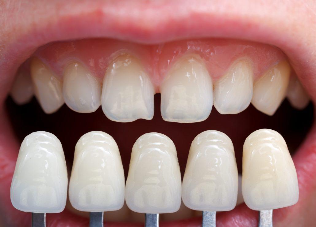 fatete-dentare-ceramice