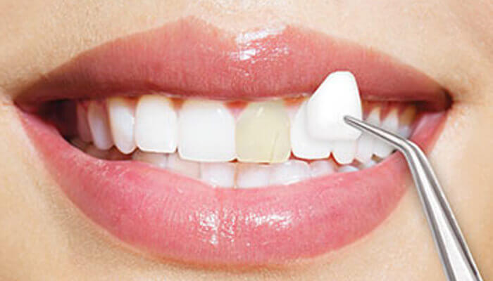 fatete-dentare-din-portelan