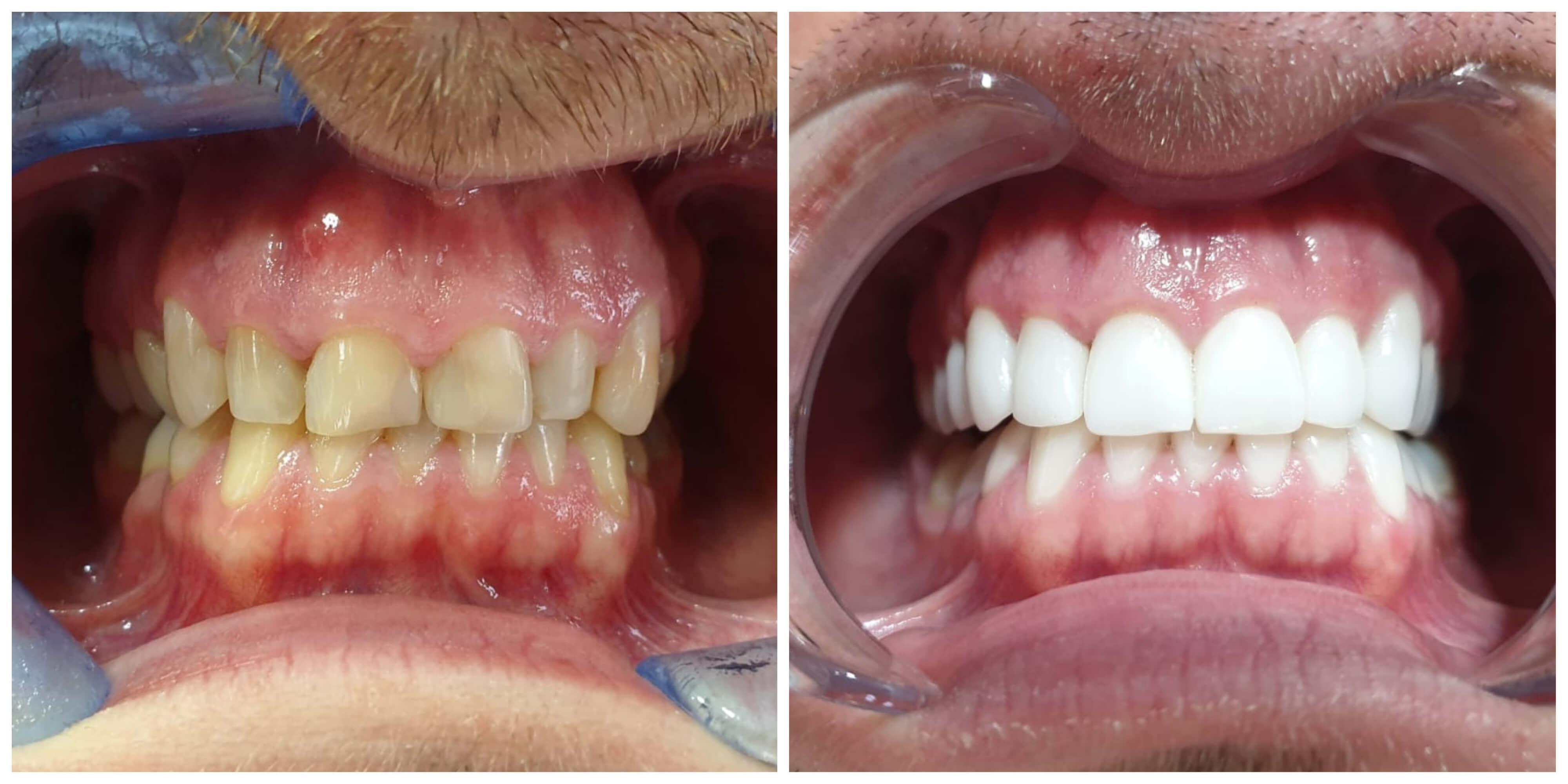 fatete-vs-albirea-dintilor