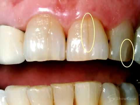 fisuri-dentare-bruxism