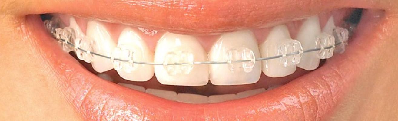 aparat-dentar-ceramic-invizibil