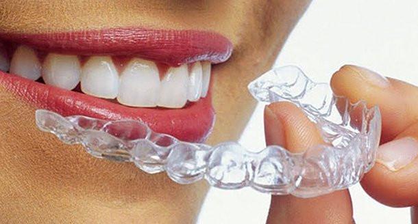 aparat-dentar-invisalign