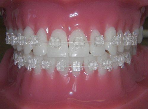 aparat-dentar-invizibil