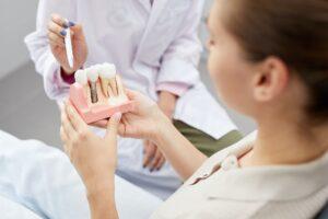 Tooth Implantation Model
