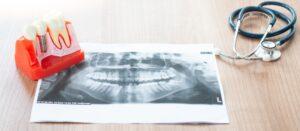 Dental implant model in dental office.