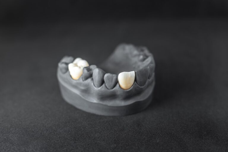 Model of artificial jaw with dental implant