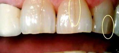 fisuri dentare bruxism